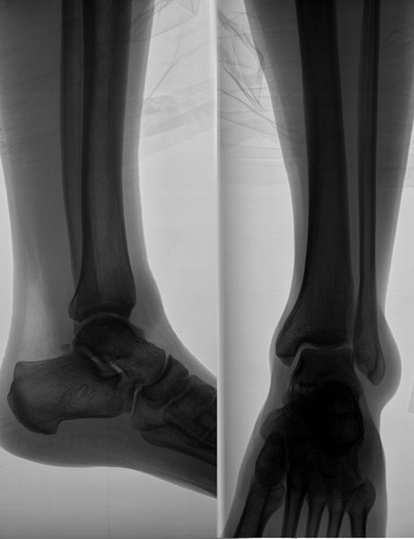 X-ray image of the leg: Roentgenic photo of the ankle